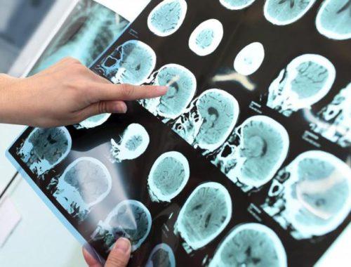 cientificos-valencianos-descubren-los-cambios-que-se-producen-en-un-cerebro-con-alzheimer-años-antes-de-que-aparezcan-los-sintomas